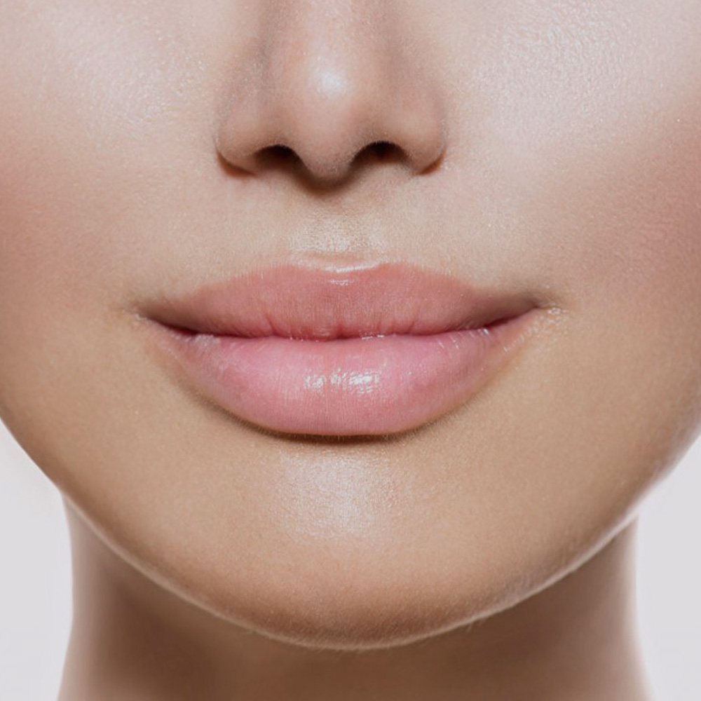 Lip Augmentation – The White Rooms Clinic