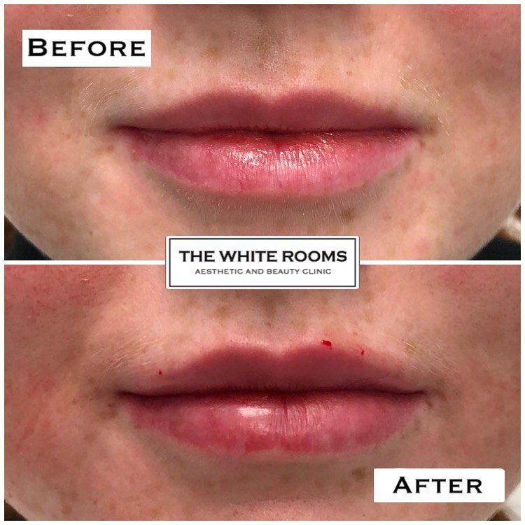 The Best Lip Filler clinic in Liverpool