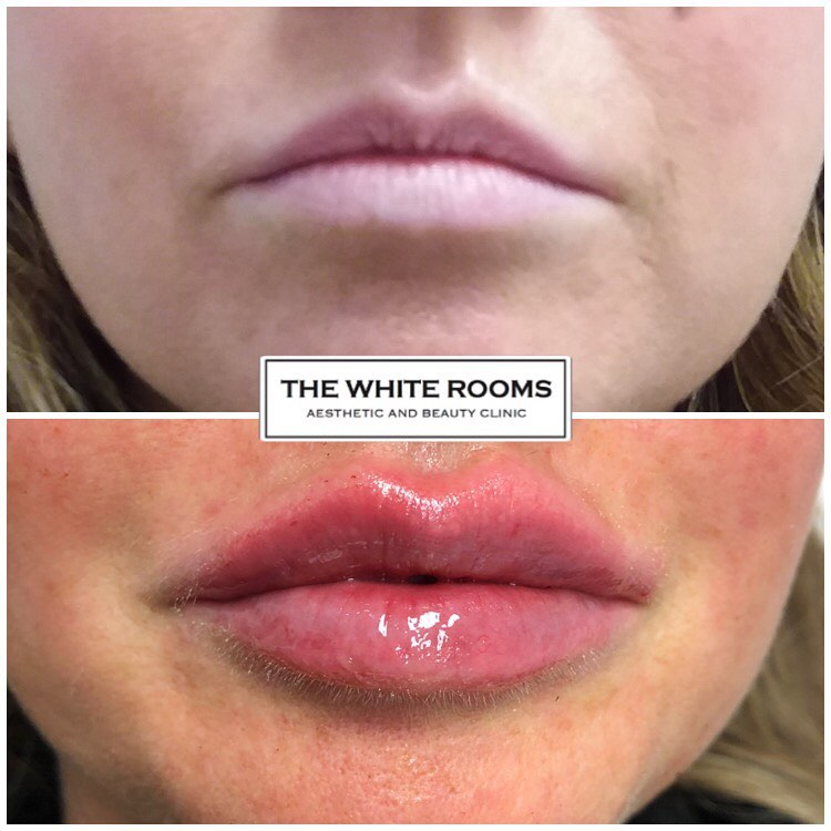 Lip Filler Offer